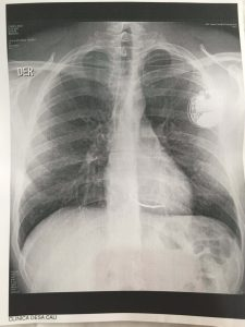 x-ray of lung infection covered by world nomads travel insurance