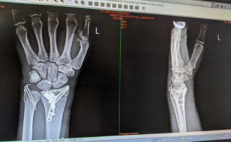 x-ray of broken wrist after motorcycle accident riding from Chiang Mai to Pai in Thailand